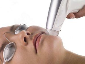 traitement-couperose-laser