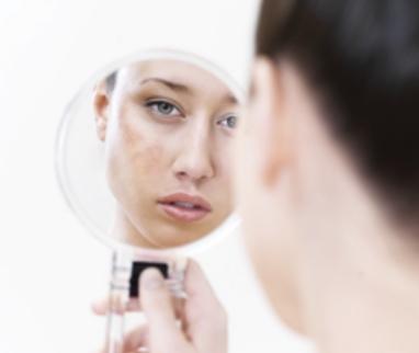 Comment faire disparaître le masque de grossesse ?
