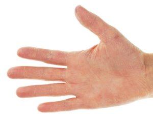 eczema-contac-main