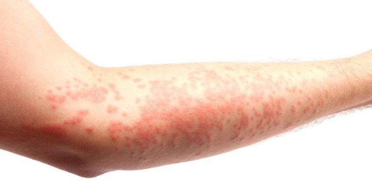 Comment soigner l'eczéma de contact naturellement ?
