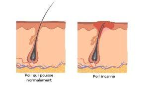 eviter-les-poils-incarnes