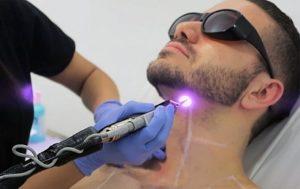 laser-pseudo-folliculite-visage
