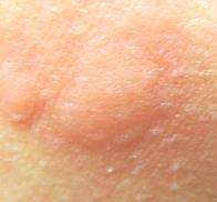 les-piqures-de-moustiques