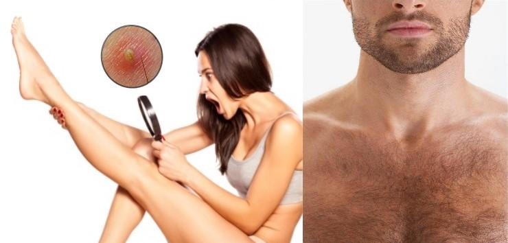 Comment éviter ou retirer les poils incarnés ?