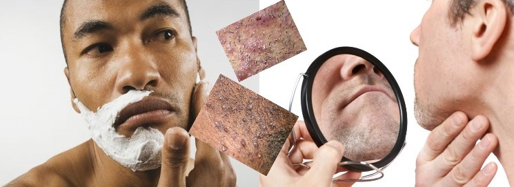 Comment prévenir la pseudo-folliculite de la barbe ?