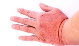 mains-sèches