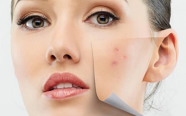 Est-il normal de faire des réactions aux cosmétiques naturels ?
