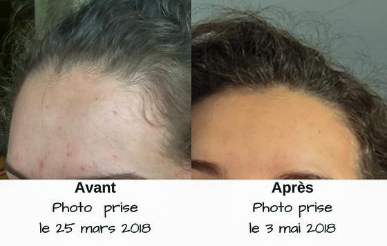 boutons-acne-remedes-naturels