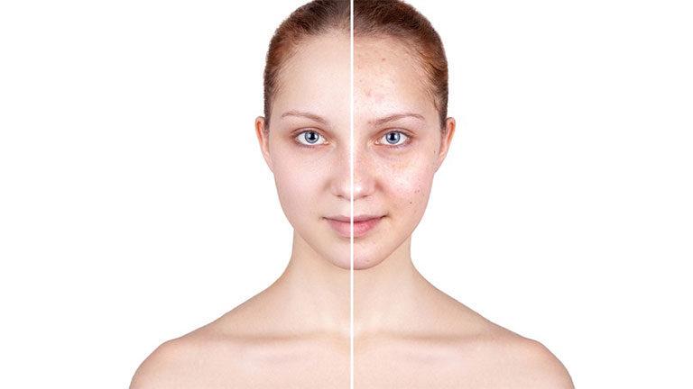 lutter-contre-acne