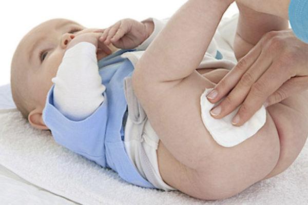 Comment prévenir ou soulager les fesses rouges des bébés ?
